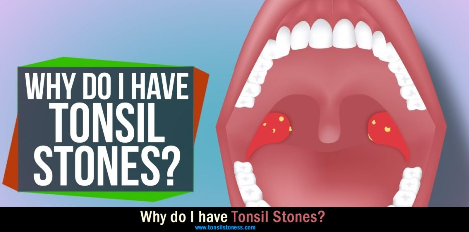 Why Tonsil Stones Occur?