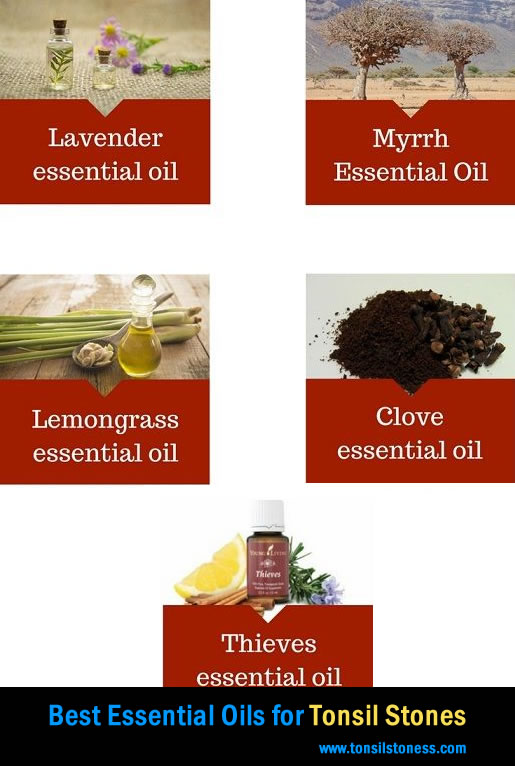 Best Essential oils for tonsil stones treatments