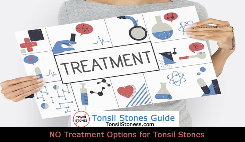 no treatment option tonsil stones