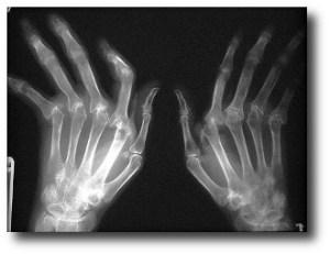 8. Combate la artritis reumatoide
