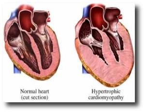 2. Transplante de coraz+¦n
