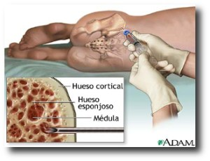 6. Transplante de medula osea