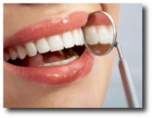 2. Blanquea los dientes amarillos