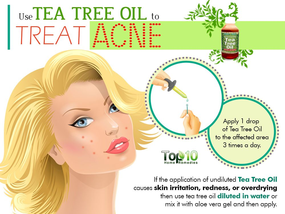 Image Result For Aloe Vera Gel With Tea Tree Oil For Acne
