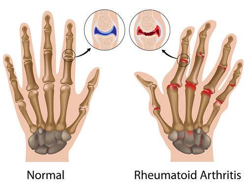 rheumatoid arthtitis hand