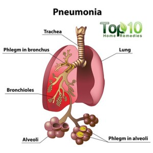 Home Remedies for Pneumonia | Top 10 Home Remedies