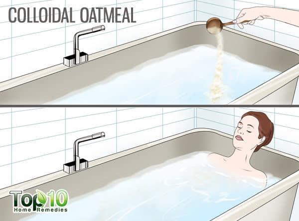 colloidal oatmeal heals inverse psoriasis