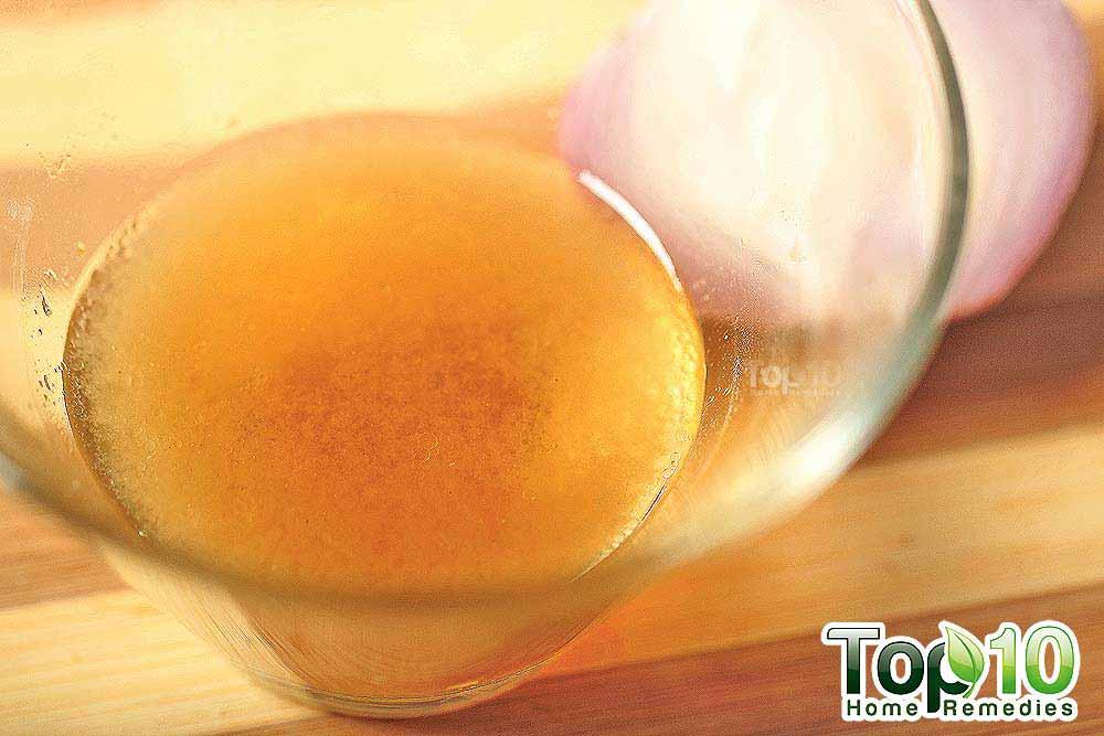 DIY Homemade Onion Juice And Honey Hair Loss Treatment