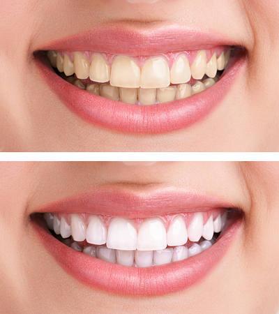 Whiten dentes