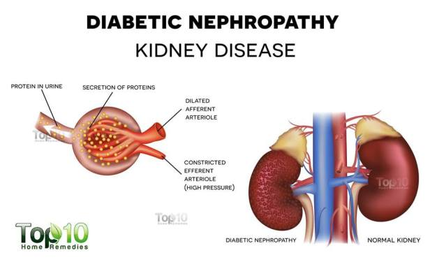 diabetes and kidney damage
