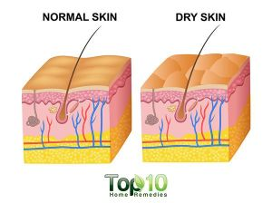 Home Remedies to Fight Dry Skin This Winter   Top 10 Home