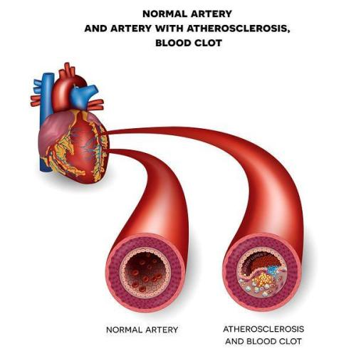 healthy and unhealthy arteries