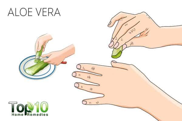 Use aloe vera for nail psoriasis