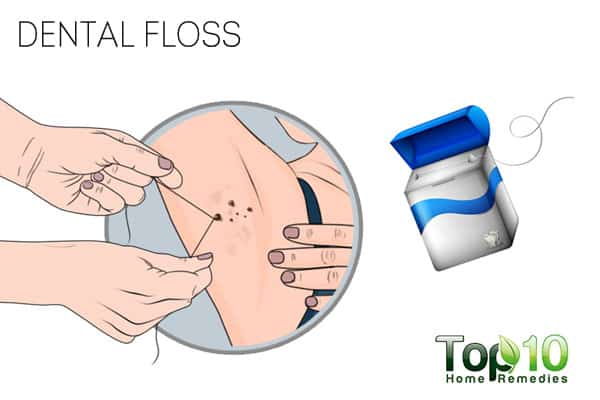Use dental floss to get rid of skin tags on armpits