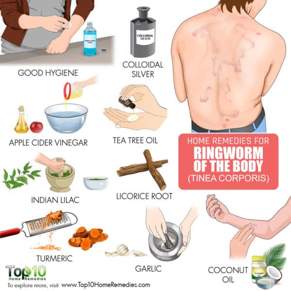 home remedies for ringworm of the body