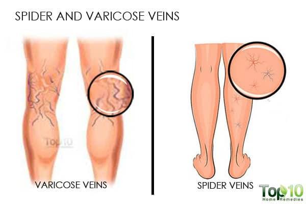 spider veins during pregnancy third trimester