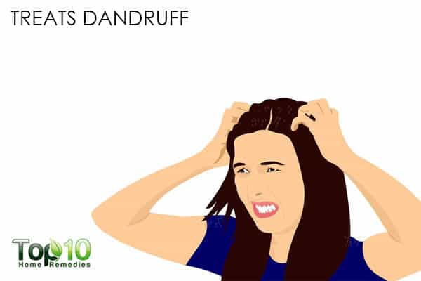 treat dandruff with chamomile for beauty purposes
