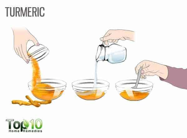turmeric reduces inverse psoriasis