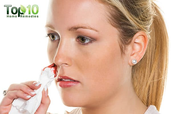 how to deal with nosebleeds during pregnancy