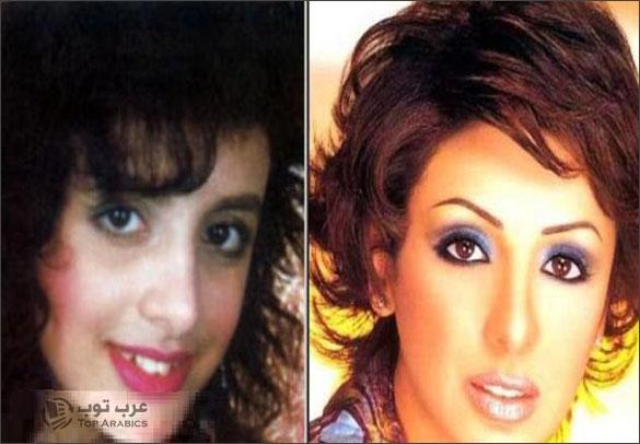 فنانات قبل وبعد عمليات التجميل