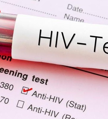 7 Signs You May Have HIV Without Knowing