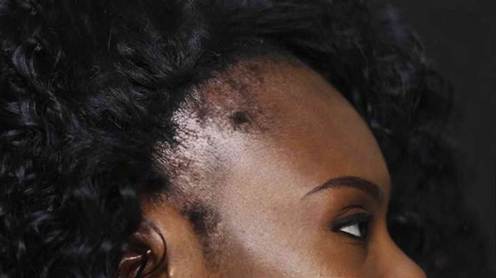 Thinning Hair Loss Products For Women