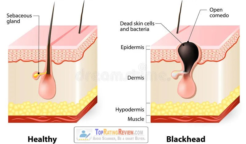 What are blackheads | Causes of blackheads | How to get rid of blackheads.
