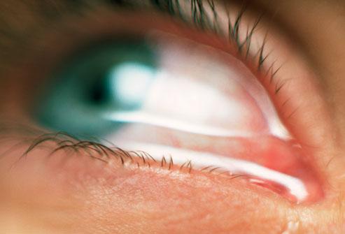eye water