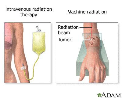 pain-radiation