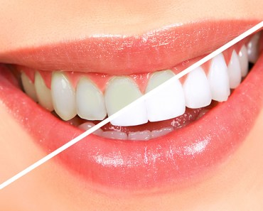 teeth-whitening-methods