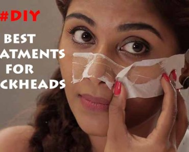 best-treatments-for-blackheads-8