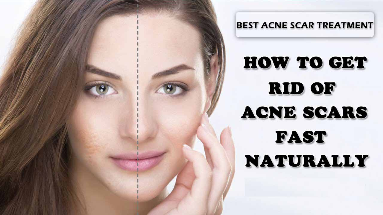Watch How to Get Rid of Acne Scars Naturally video