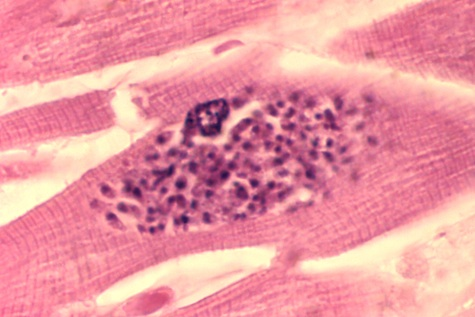 toxoplasma gondii cats crazy