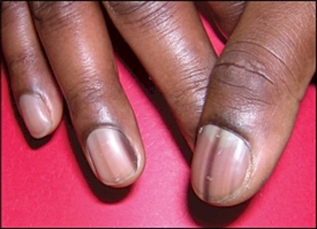 Explosive! 7 Things Your Nails Can Tell You About Your ...