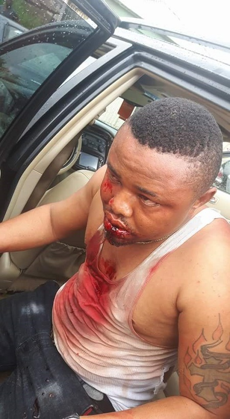 thug Beat 4 - Thugs Beat Two Brothers To A Pulp Over Market Fee In Edo State (Photos)
