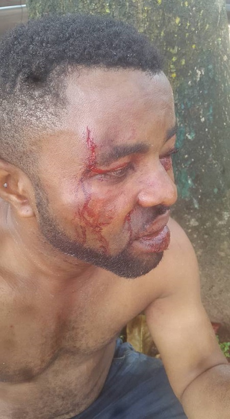 thug beat - Thugs Beat Two Brothers To A Pulp Over Market Fee In Edo State (Photos)