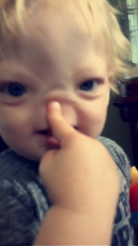 Shocker: Meet the Baby Boy Who Was Born Without a Nose (Photos)