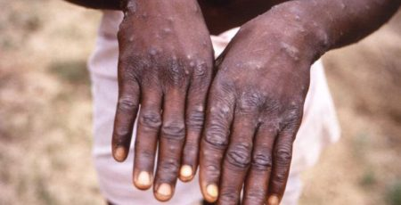 Monkeypox1 Is There Monkey Pox in Ogun State? Checkout What the Health Commissioner Has to Say About It