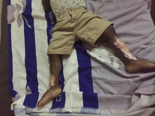 Image result for Phone Igniting Gas Explosion Is Real, Be Warned - Nigerian Woman Says As She Suffers Severe Burns