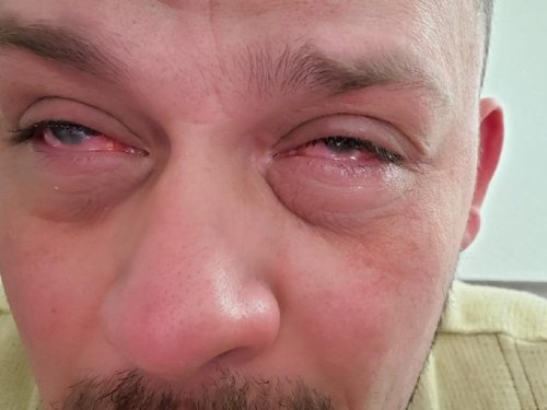 The man became blind after contracting mutated coronavirus