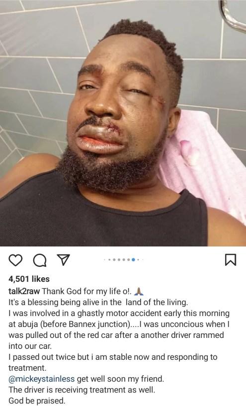 PHOTOs: Nigerian rapper, Mr Raw, survives auto accident