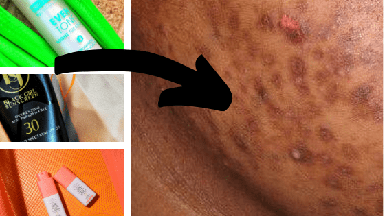 5 Ingredients to Look out for when treating Dark Spots/PIH + Tips and Product Recommendations