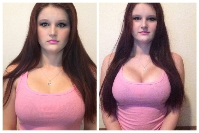Total Curve Before and After Results