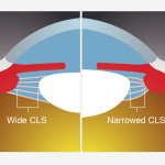 Treatment of Presbyopia with Scleral Implants