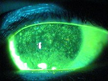 Staining of Damaged Cells on the Eye from Dry Eye Syndrome