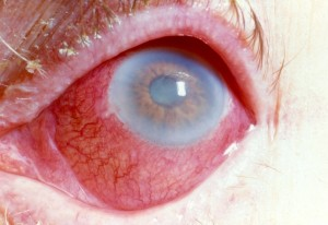 photo of red eye from uveitis