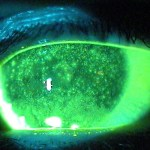 photo of staining of dead cells on cornea from dry eyes
