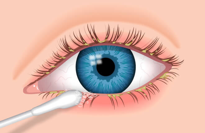 diagnosing blepharitis
