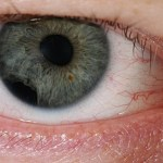 Corneal Abrasion – Everything You Need to Know About It