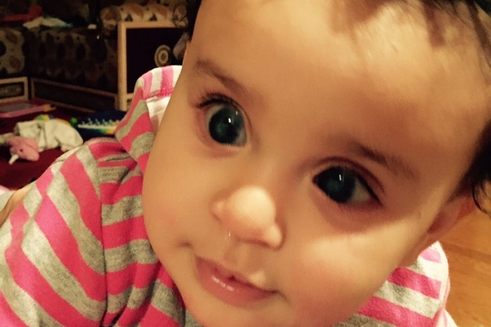 baby with congenital glaucoma